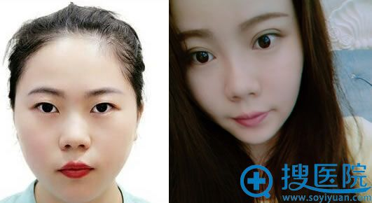 北京奥德丽格马晓艳双眼皮案例