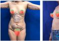 我刚做了自体脂肪丰胸和全身吸脂,预约的是上海美莱袁玉坤教授