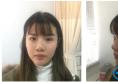 之前在上海迪蔻整形医院找张忠溢做过双眼皮这次又来做隆鼻手术