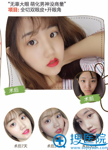 上海薇琳医美孙荣院长做的双眼皮案例