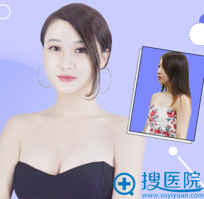 上海薇琳医美赵弘宇做的假体隆胸案例