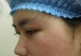 之前在上海明桥整形医院做过双眼皮这次又来找孙超医生做隆鼻
