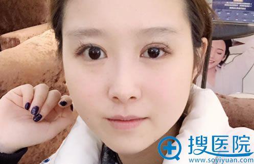 找北京奥德丽格刘志刚做双眼皮修复前