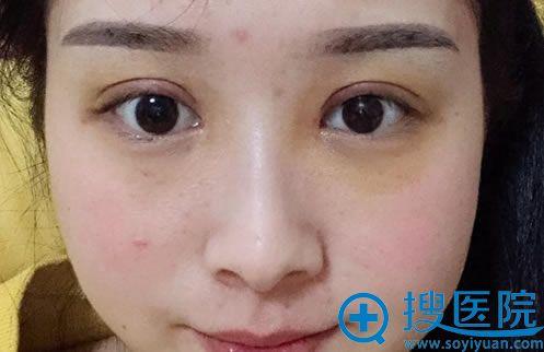 做完双眼皮修复5天恢复照