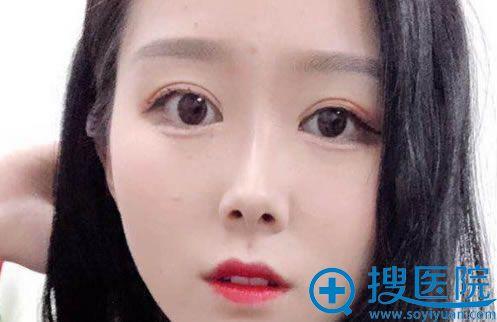 找奥德丽格刘志刚做双眼皮修复15天后