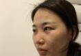 两个月前我花4万元找上海百达丽整形医院韩嘉毅做了鼻综合隆鼻