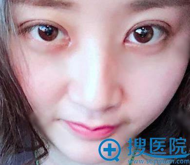 选择北京美天李立仲做双眼皮内眼角10天后