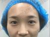 评论下朔州丽都整形医院杨明锋与王同坡做的双眼皮哪个效果好