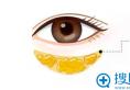 重庆祛眼袋哪家整形医院好?重庆骑士祛眼袋手术案例价格表参考