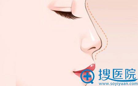 北京做假体隆鼻多少钱