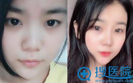 北京亚馨美莱坞张海明膨体隆鼻案例