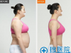 体型偏胖的我想问下吸脂减肥价格多少钱?