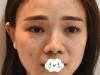 将我假体隆鼻术失败修复的经验和价格分享给鼻整形失败的你