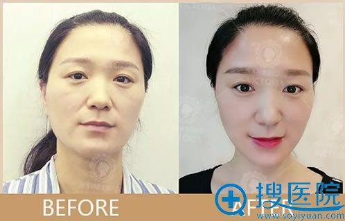 面部线雕提升真人案例效果