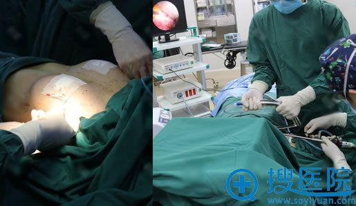 北京丽都整形假体隆胸过程