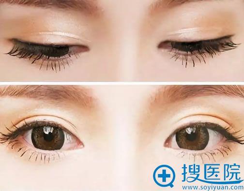 针对近期咨询做双眼皮手术爱美者的常见问题清单整理如下