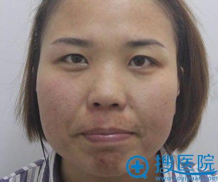 根据北京世熙整形口碑评价选择宋玉龙割双眼皮+开眼角+鼻综合