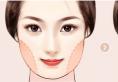我来告诉你面部吸脂多少钱?做完吸脂脸上出现凹凸不平怎么办?