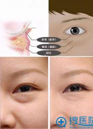 怎样消除眼袋方法简单又有效果,这就教你如何预防眼袋侵袭