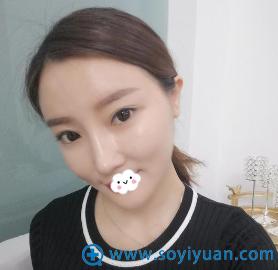 重庆美婵吴一不仅双眼皮修复好,隆鼻失败修复效果也不错