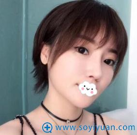 重庆美婵吴一隆鼻失败修复术后恢复效果图