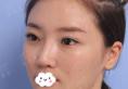朋友在重庆美禅让吴一做双眼皮修复时说他隆鼻修复也挺好我才来
