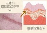想让剖腹产疤痕长得好看先了解术后怎么护理与激光去疤痕效果