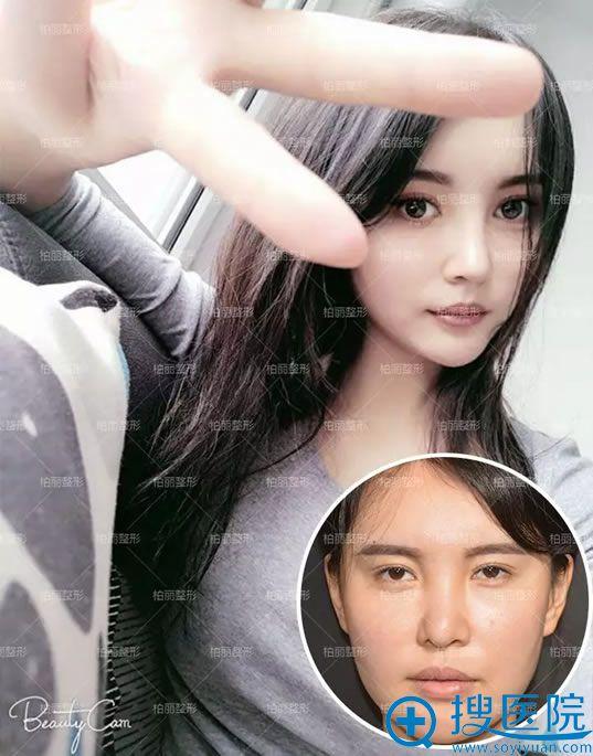 北京柏丽李劲良假体隆鼻修复案例