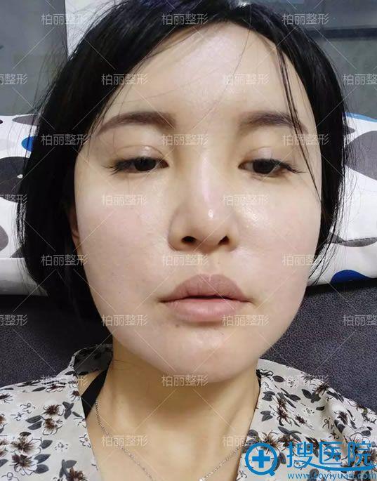 找北京柏丽做鼻修复手术前
