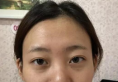 怎样能改变气质?我做假体隆鼻综合整形3个月后换来美丽余生