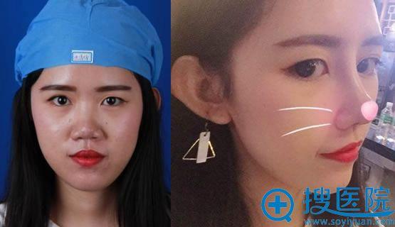 广州海峡李希军耳软骨复合隆鼻案例