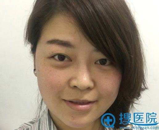 在北京美雅枫做双眼皮和隆鼻前