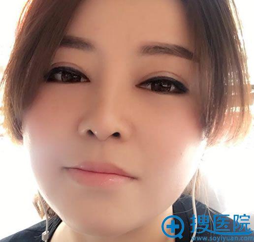北京美雅枫韩新鸣做双眼皮修复30天效果