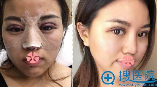 做完双眼皮和假体隆鼻即刻效果和5天后拆掉鼻夹的照片