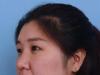 在烟台鹏爱做切开双眼皮后朋友建议我再来找魏璐做个隆鼻整形