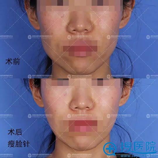 艾红梅注射瘦脸针真人案例效果