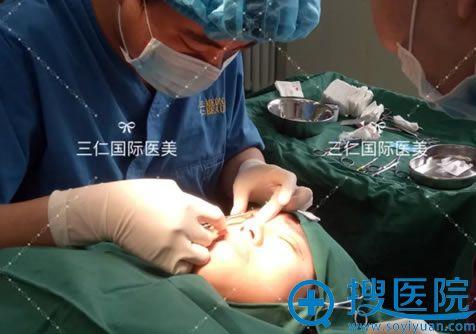 北京三仁医院伊光割双眼皮过程