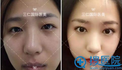北京三仁伊光院长双眼皮案例