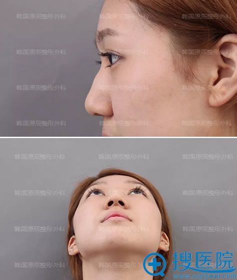 在韩国原辰做假体隆鼻手术前