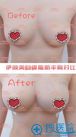 天津伊颜美脂肪丰胸真人案例术前术后效果对比图