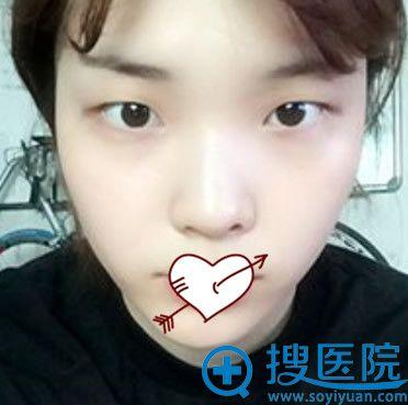 去杭州华山连天美做V-LINE瓜子脸手术,是在看了高俊明案例之后