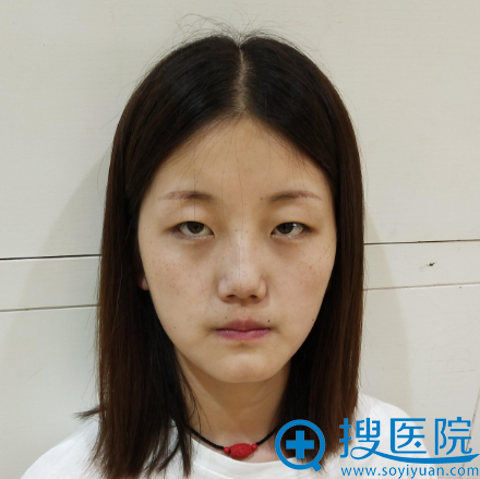 在上海华美做全切双眼皮手术前