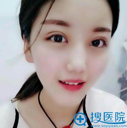 上海华美佀同帅做的全切双眼皮案例效果图