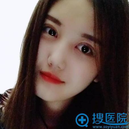 在上海华美找佀同帅做完全切双眼皮两个月了