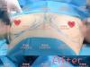 听资深专家讲断奶后乳房下垂矫正的方法中哪种效果比较好?