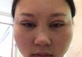 说说我在贵阳美莱整形医院找陈雯婷做全切双眼皮的经历