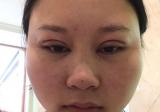 说说我分期付款在贵阳美莱整形医院找陈雯婷做全切双眼皮的经历