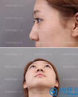 面诊国内几家整形医院后我毅然选择韩国原辰做隆鼻矫正鹰钩鼻