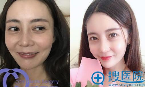 韩国碧夏李珉奭自体脂肪面部填充案例