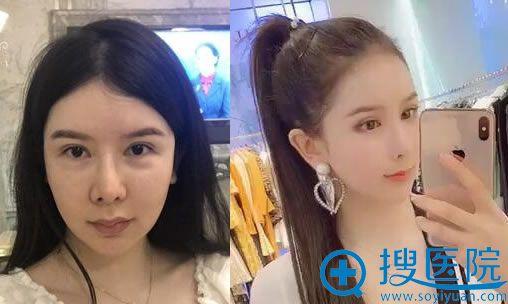 北京玉之光王明利做自体脂肪全脸填充案例